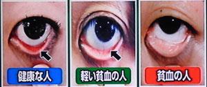 貧血が原因で起こる怖い症状-ほんまでっかTV